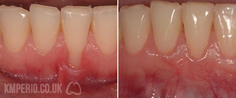 Treatment of Gingival Receding Gums by Cosmetic Plastic Surgery